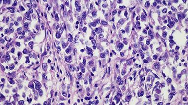 sarcoma cell