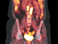 PET-CT scan taken of a patient prior to treatment