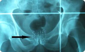 Brachytherapy seeds X ray